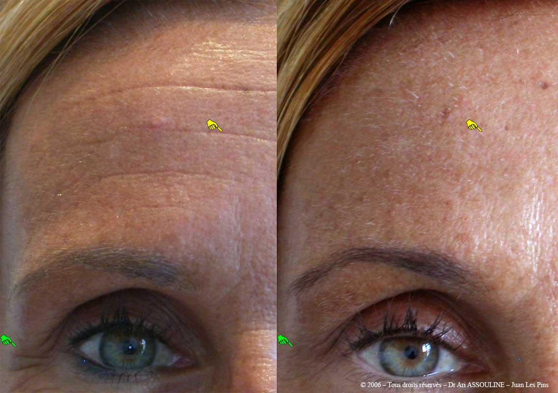 La crème pour les yeux des rides après 40 cote